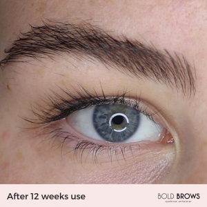 Bold Brows Eyebrow Enhancing Serum
